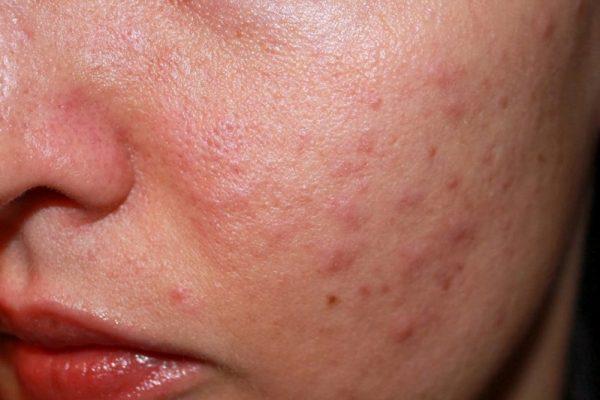 Dị ứng da vào mùa hạ – Tình trạng khó chịu cần điều trị tối ưu