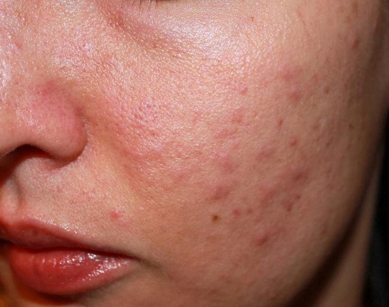 Nguyên nhân và cách trị dị ứng da mặt