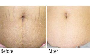 Điều trị rạn - nứt da bằng công nghệ Fotona