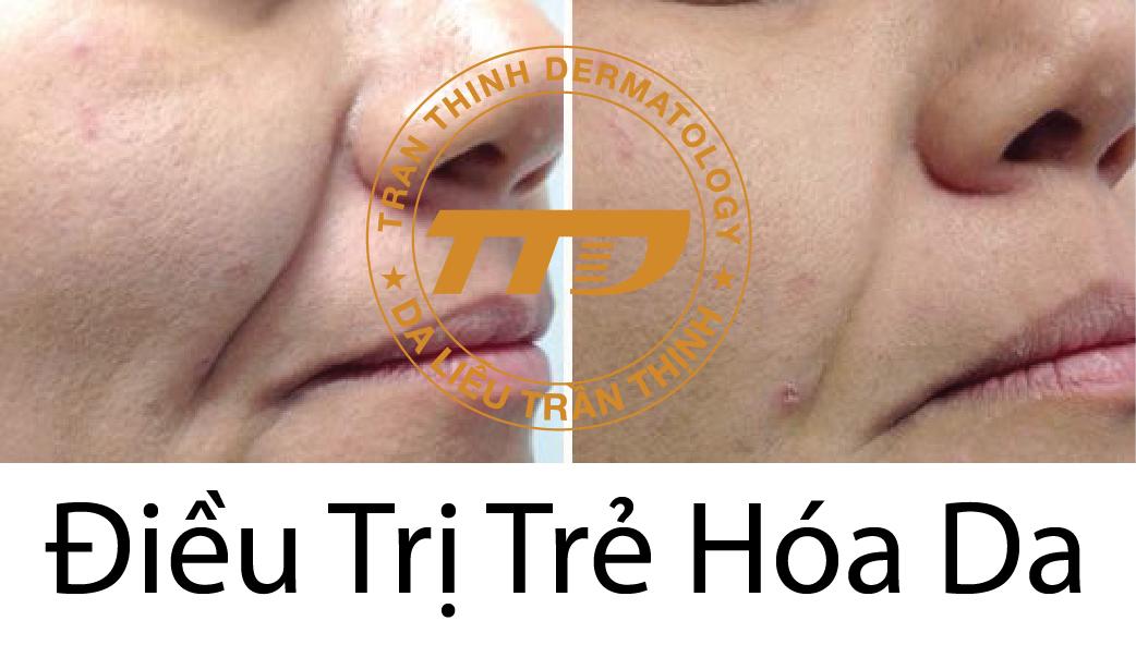 Trẻ hóa da với công nghệ Fotona 4D
