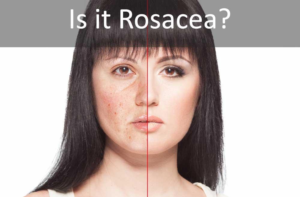 Bệnh Rosacea ở da - Những kiến thức cần nắm rõ