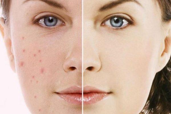 Điều trị thâm da tối ưu và hiệu quả trong thời gian ngắn