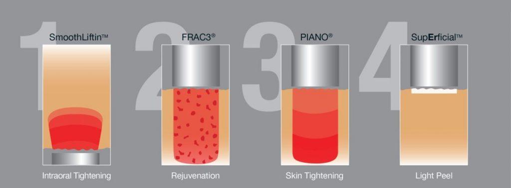 4 bước trẻ hóa da cùng Công nghệ Laser tiên tiến - Fotona 4D
