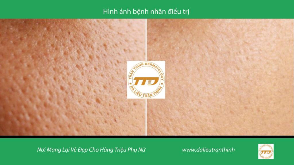 Điều trị thu nhỏ chân lông Trần Thịnh