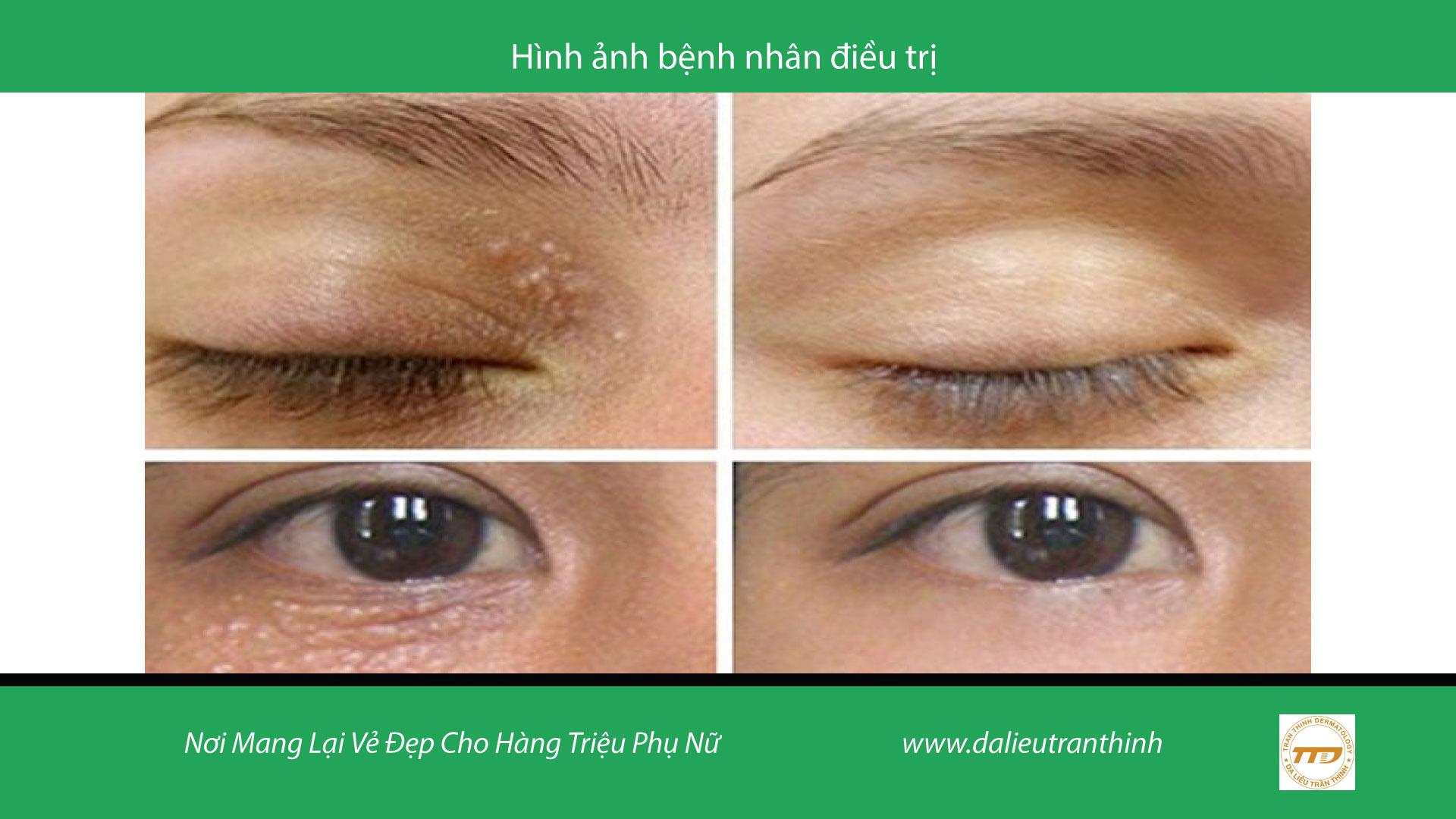 điều trị mụn thịt quanh mắt Trần Thịnh