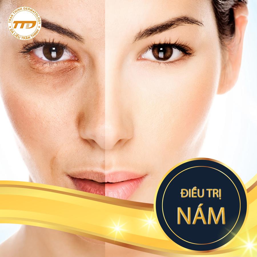 Điều trị nám hiệu quảcùngCông nghệ Fotona 4D&chuyên khoa da liễu Trần Thịnh.