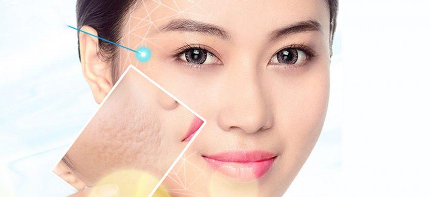 Trị sẹo lồi hiệu quảcùngCông nghệ Fotona 4D&chuyên khoa da liễu Trần Thịnh.
