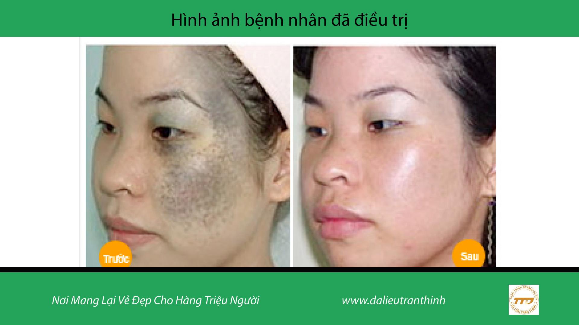 điều trị vết bớt Trần Thịnh