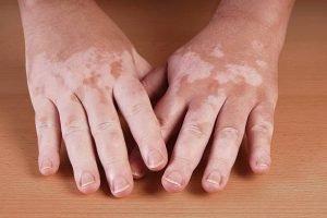Bàn tay của <em> bệnh nhân bệnh bạch biến </em>